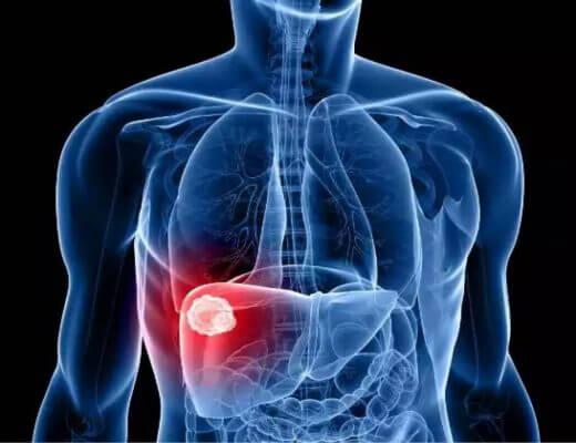 Hepatopatía crónica alimentación